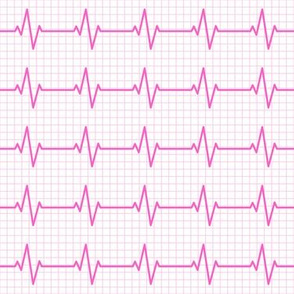 EKG - heart beat - sinus rhythm - pink on pink- LAD19