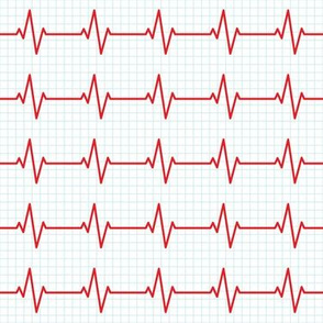 EKG - heart beat - sinus rhythm - red  on blue - LAD19