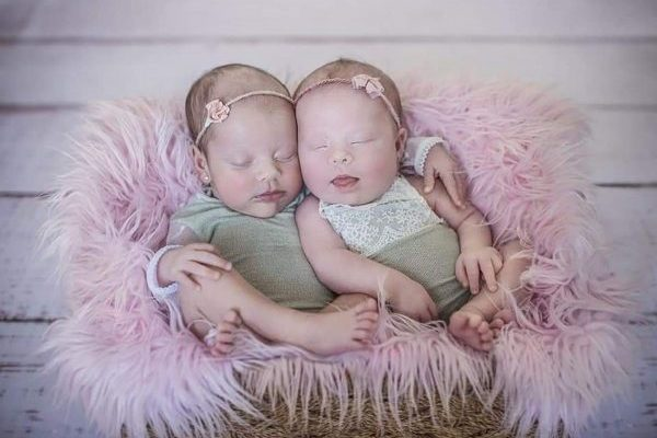 One case in a million: Brazilian woman has twins and one of them is born with Down syndrome