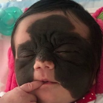 Baby is born with a rare stain on her face, and mother appeals against prejudice