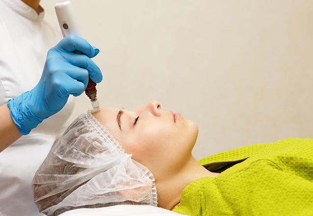Microagulhamento + Led Facial de R$150 por R$80