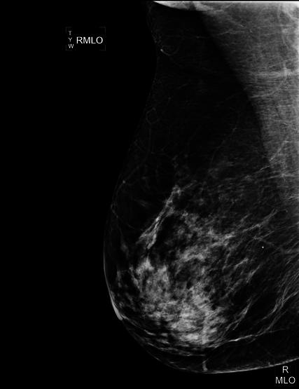 Mamografia digitalizada