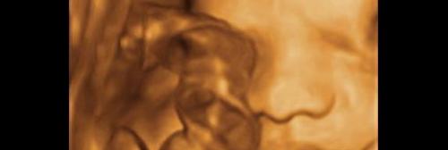 Ultrassonografia 4D