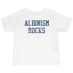 Albinism Rocks- Toddler Boy T