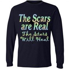 Scars & Stars
