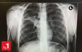 lungs chest x ray