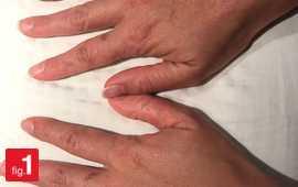 dermatology medical cases