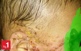 allergy-and-immunology medical cases