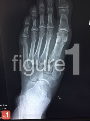 Lisfranc fracture dislocation on x-ray