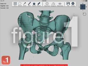 Fracture of the anterior and posterior column of the acetabulum 3D reconstruction
