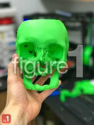 3D print of severe facial trauma