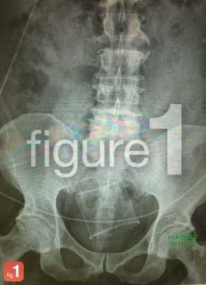 Foreign Object in Rectum XRay