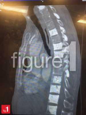 vertebral metastasis on x-ray