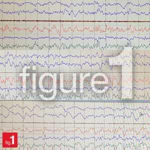 RPSGT Sleep study on EEG