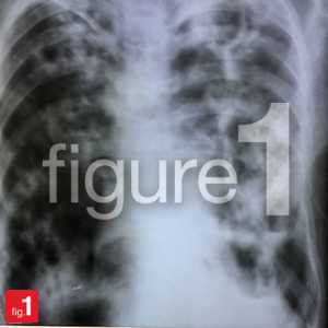 Pulmonary tuberculosis on chest x-ray