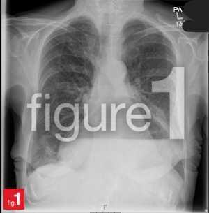 Hiatal hernia on x-ray