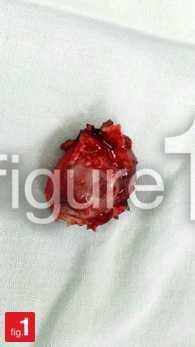 Monomorphic adenoma of palate