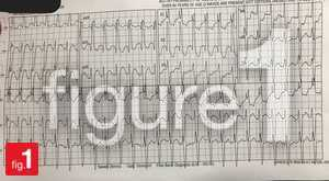 EKG of a patient on digoxin
