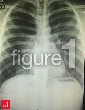 Right-sided pneumothorax on chest x-ray