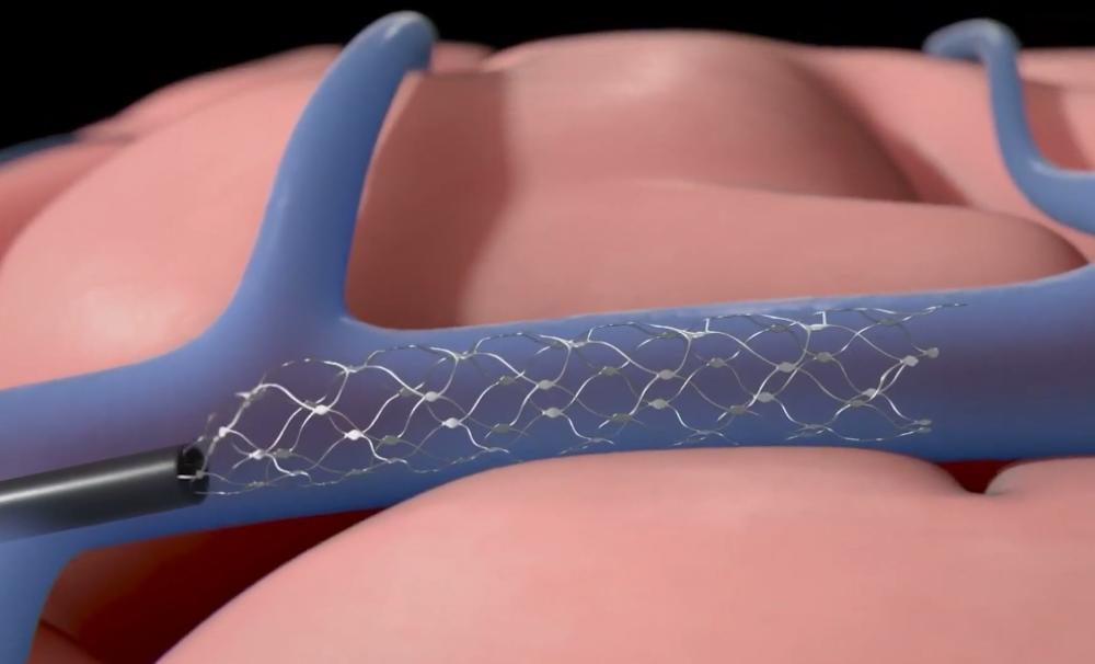 stentrode implant