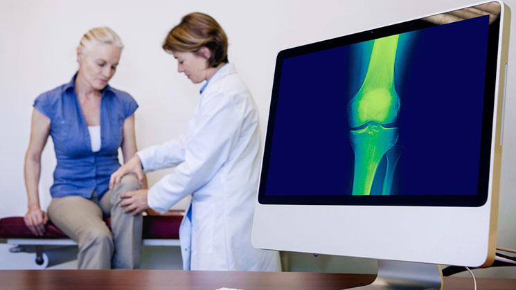 osteoporosis081116