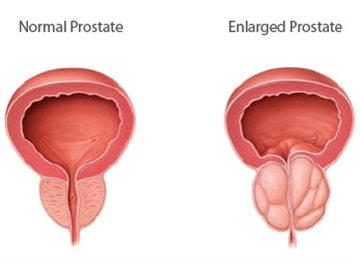 Enlarged Prostate Herbal Remedies & Natural Treatment for BPH