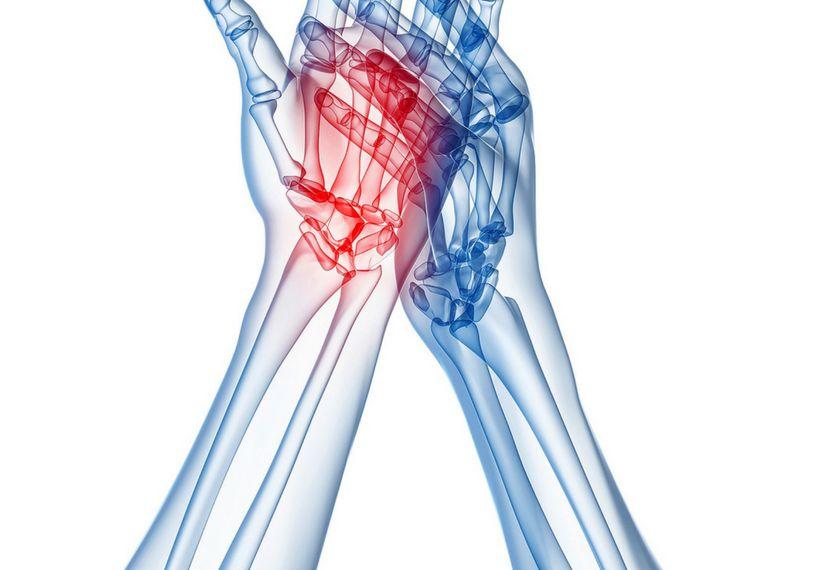 4 remedios naturales para la artritis