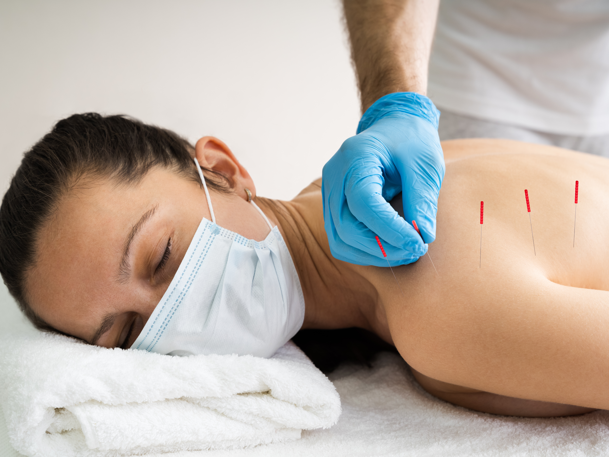 What Conditions Does Trigger Point Dry Needling Help With