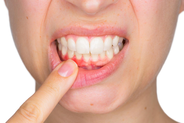 Woman with Mild Gum Disease