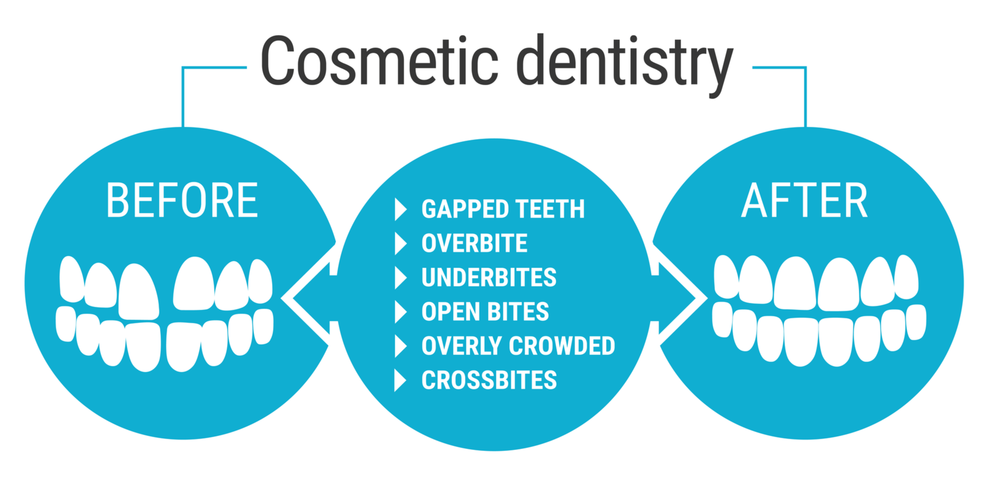 Cosmetic Dentistry Infographic​​​​​​​