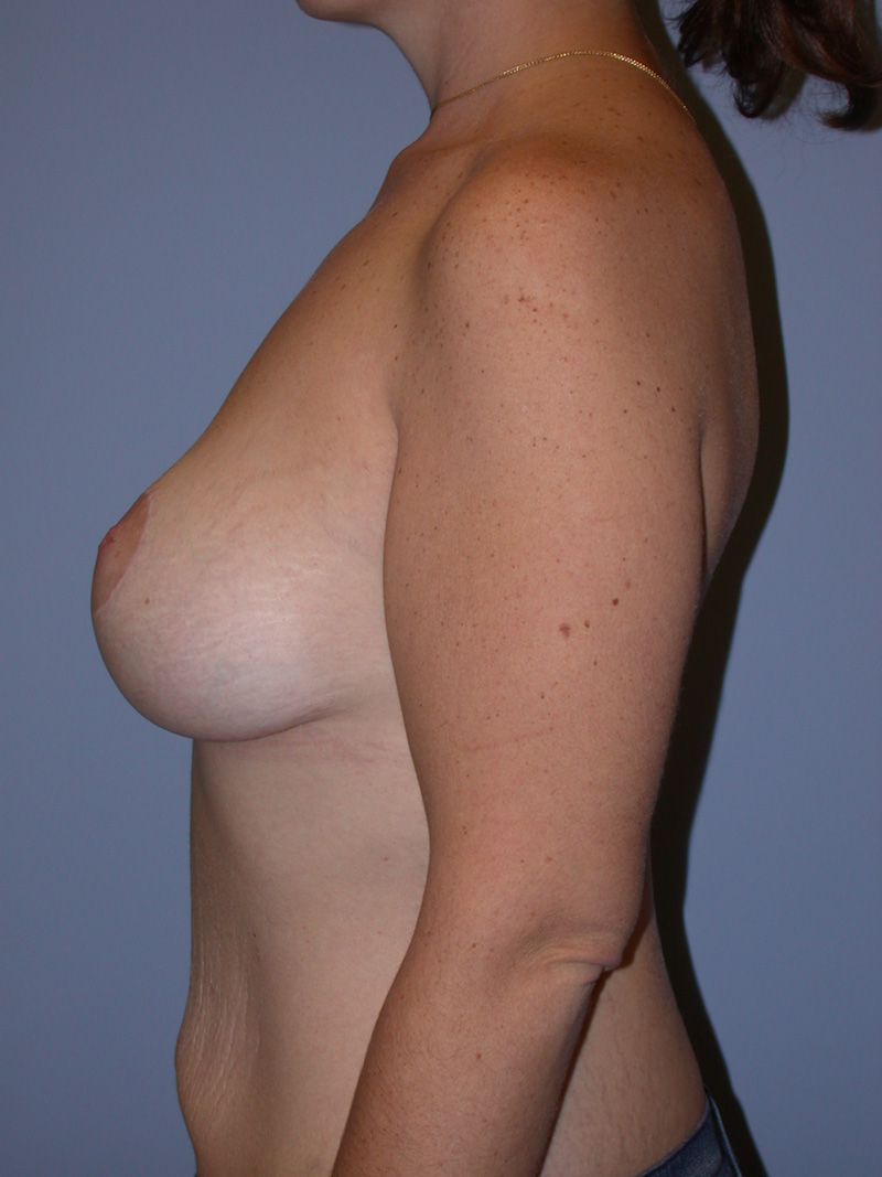 Beast Lift with Implants After