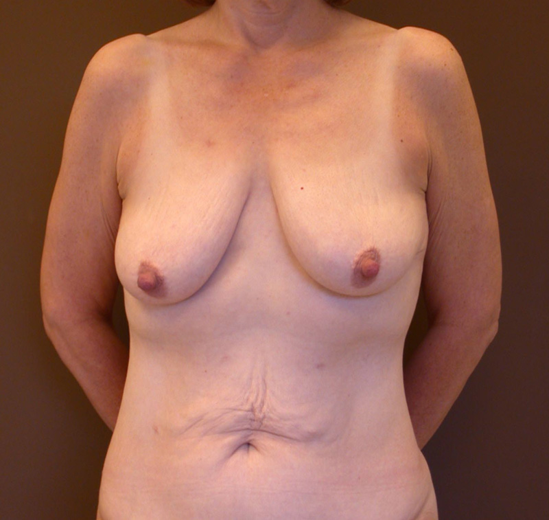 Before Breast Lift by Dr. Bermudez