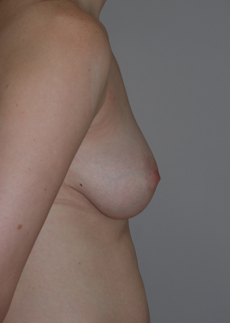 After Breast Augmentation with Fat Grafting by Dr. Bermudez