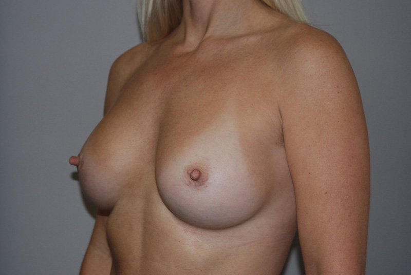 Gel Breast Implants After