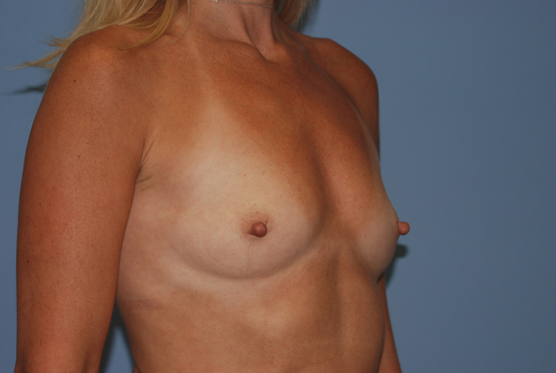 Gel Breast Implants Before