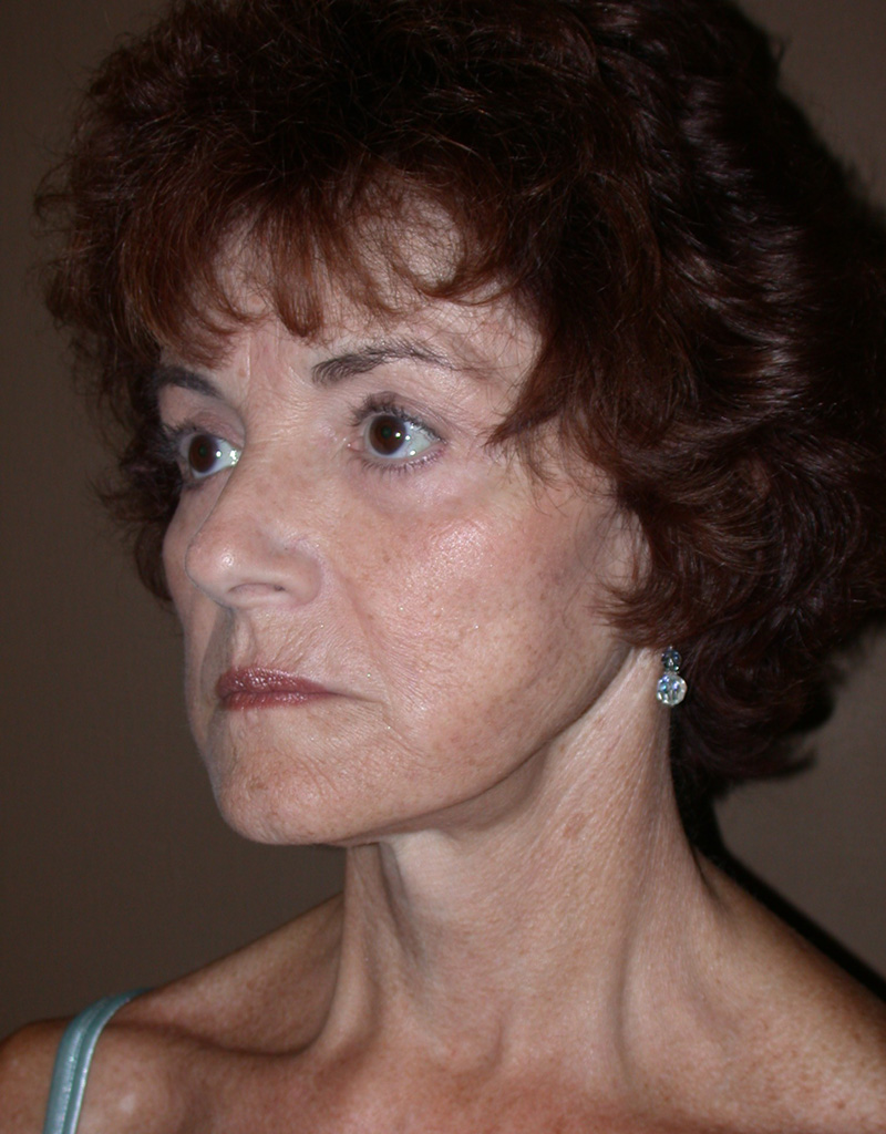 After Face Lift with Eyelid Surgery by Dr. Bermudez in San Francisco