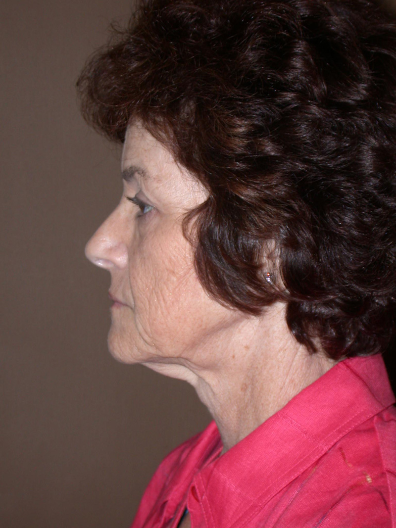 Before Face Lift with Eyelid Surgery by Dr. Bermudez in San Francisco