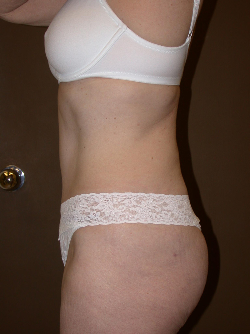 After Abdominoplasty