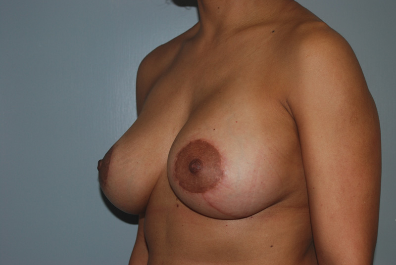 After Breast Lift with Fat Grafting by Dr. Bermudez in San Francisco