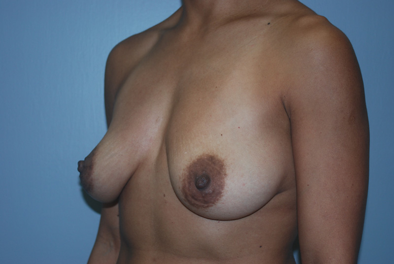 Before Breast Lift with Fat Grafting by Dr. Bermudez in San Francisco