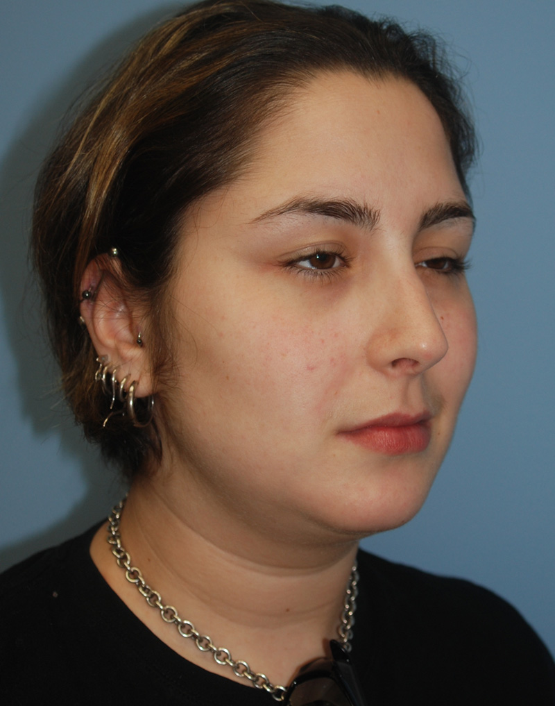 After Nose Job Surgery by Dr. Bermudez in San Francisco