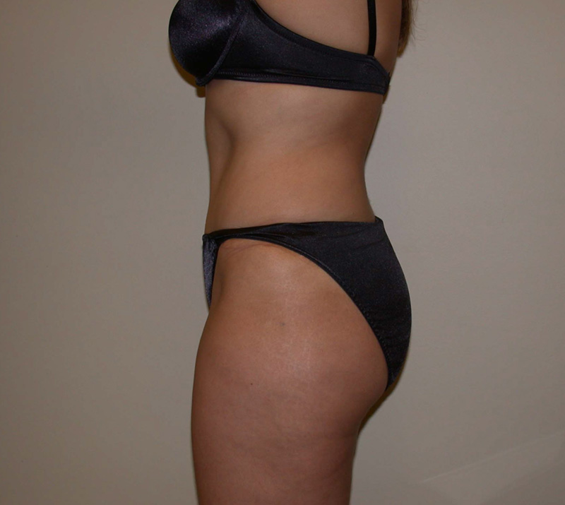 After Abdominoplasty by Dr. Bermudez