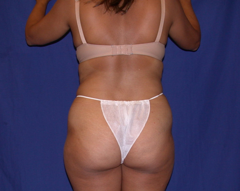 Before Abdominoplasty by Dr. Bermudez