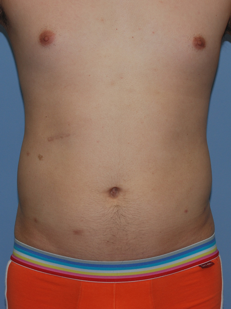 Before Liposuction by Dr. Bermudez