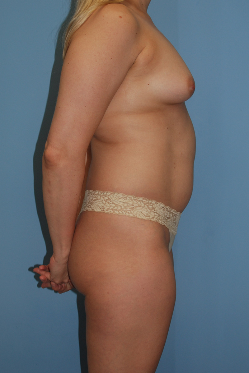 Before Abdominplasty