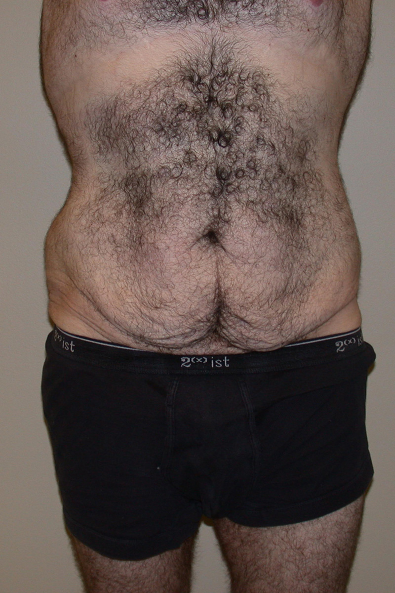 Before Belt Lipectomy