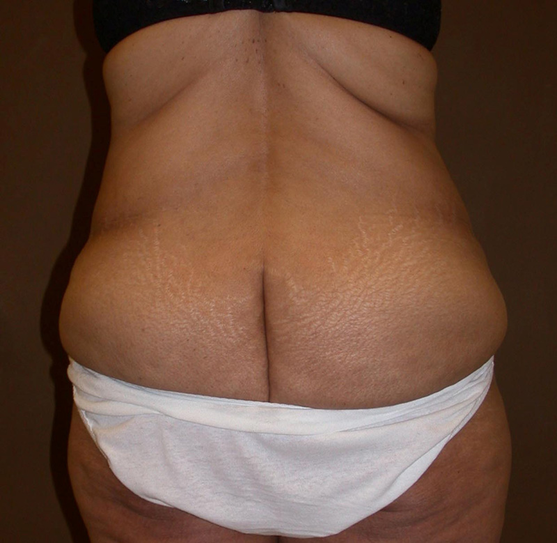 body lift before