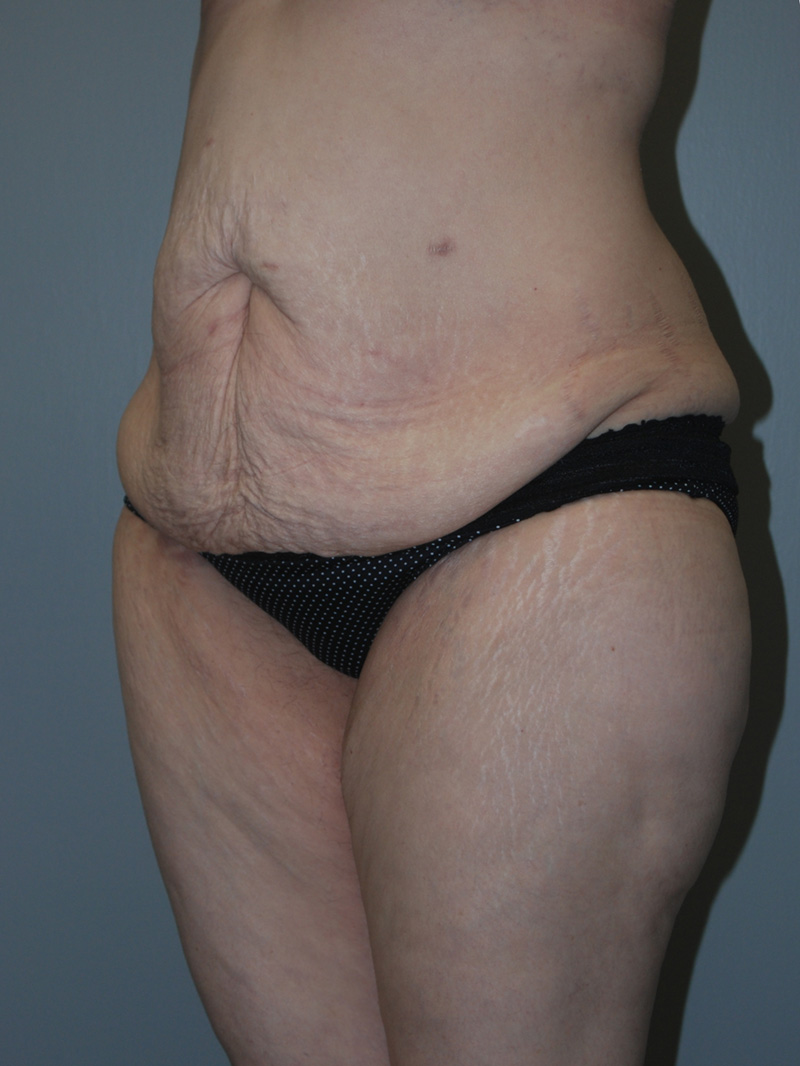 belt lipectomy before