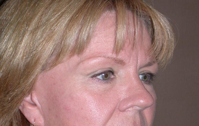 blepharoplasty after photos