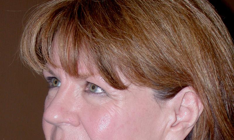 blepharoplasty Before photos